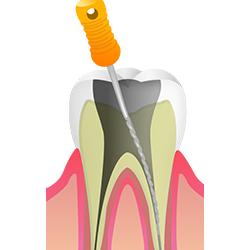 できる限り歯を残すために