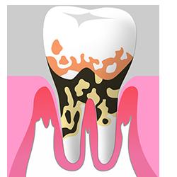 日本の成人の80%以上が歯周病にかかっています